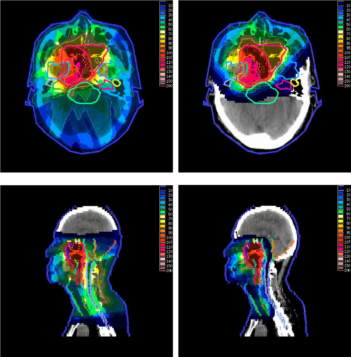 """Srovnání dávek radiace při léčbě klasickou (vlevo) a protonovou (vpravo) terapií - ilustrační obrázek v článku """"Protonová terapie"""" na české Wikipedii (autor: Taheri-Kadkhoda et al., licence CC BY 2.0)"""